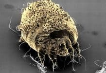 A Scabies Mite. (Photo courtesy WebMD)