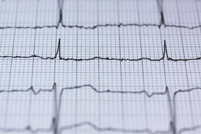 EKG. (File photo)